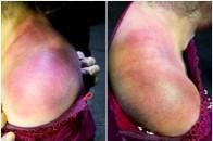 重庆北碚公园传奇:拍大椎、两侧肩颈,肩周炎明显改善等三则