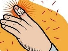 不想患上白癜风就好好保护你的手吧